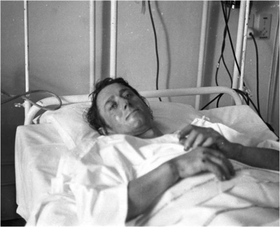 René Desmaison in hospital after spending 342 hours on the face during his first attempt